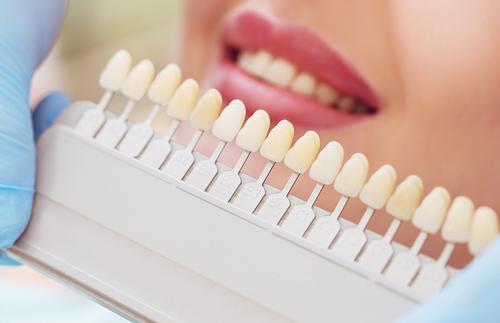 5 Best Ways to Whiten Teeth