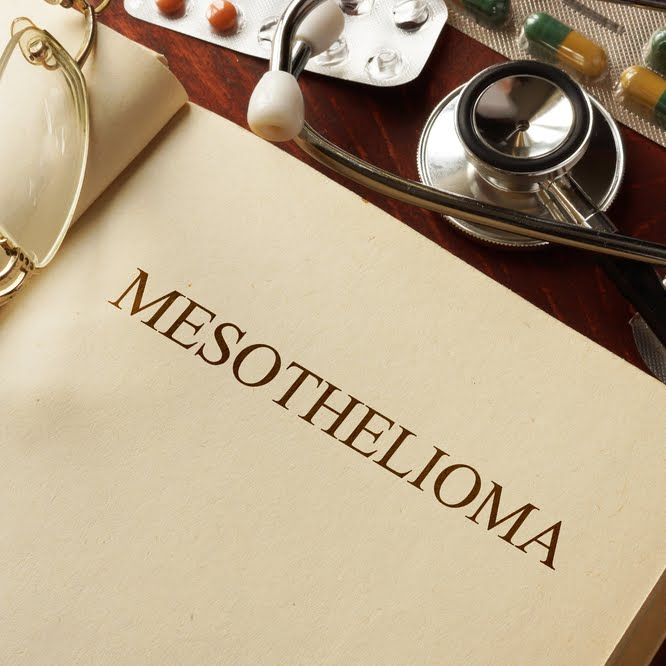 Search For Mesothelioma Doctor