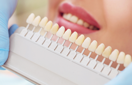 5 Best Ways to Whiten Teeth